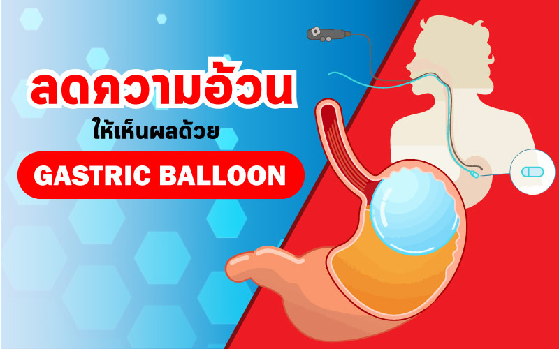 ลดความอ้วน ให้เห็นผลด้วย Gastric Balloon