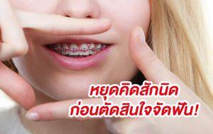 หยุดคิดสักนิด ก่อนตัดสินใจจัดฟัน!