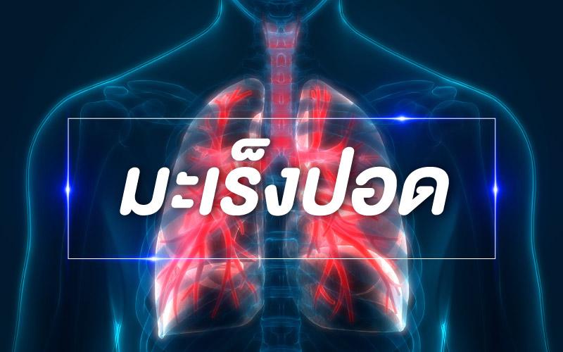 โรคทั่วไป : มะเร็งปอด (Lung Cancer)