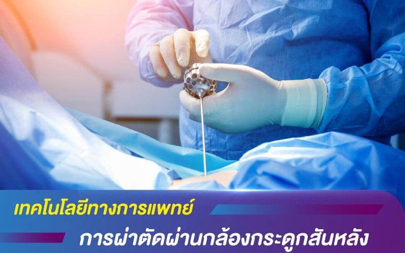 เทคโนโลยีทางการแพทย์ ด้วยการผ่าตัดผ่านกล้องกระดูกสันหลัง