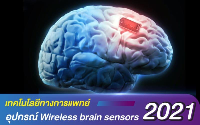 เทคโนโลยีทางการแพทย์ 2021 กับอุปกรณ์ Wireless brain sensors