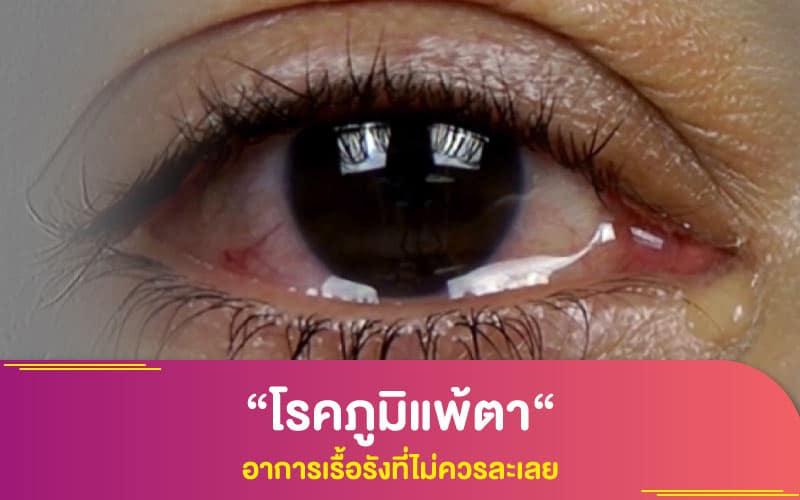 """""""โรคภูมิแพ้ตา"""" อาการเรื้อรังที่ไม่ควรละเลย"""