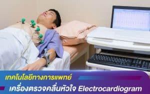 เทคโนโลยีทางการแพทย์ เครื่องตรวจคลื่นหัวใจ Electrocardiogram