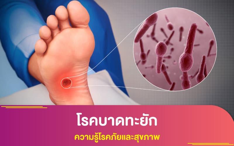 โรคบาดทะยัก - ความรู้โรคภัยและสุขภาพ