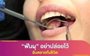 """การตรวจสุขภาพ : """"ฟันผุ"""" อย่าปล่อยไว้ อันตรายถึงชีวิต"""