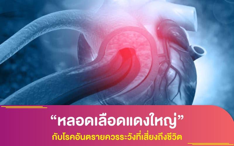 """""""หลอดเลือดแดงใหญ่"""" กับโรคอันตรายควรระวังที่เสี่ยงถึงชีวิต"""